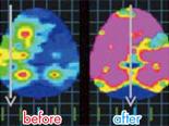 脳内バランス